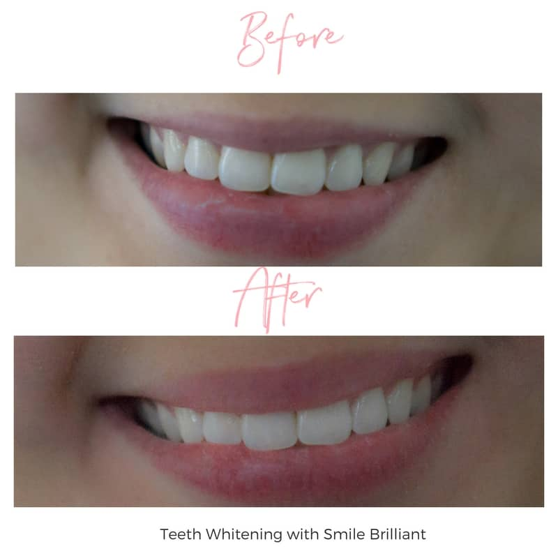 SmileBrilliant Review Before and After - Lace and Sparkles